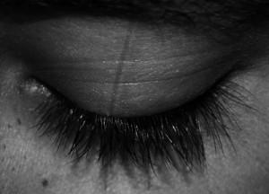 Kleiner Hoffnungsschimmer: Laserstrahlen sollen Wachkoma-Patienten zu mehr Bewusstsein verhelfen