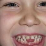 Deutlich frühere Vorsorgeuntersuchungen gefordert – Immer mehr Kleinkinder leiden unter frühkindlichen Zahnschäden