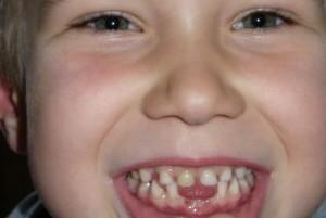 Deutlich frühere Vorsorgeuntersuchungen gefordert - Immer mehr Kleinkinder leiden unter frühkindlichen Zahnschäden