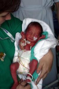 Klinik-Atlas für sehr leichte Frühgeborene - Internet-Portal soll Eltern helfen, die richtige Klinik zu finden