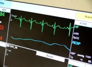 Kleinstes EKG weltweit: Mini-EKG rettet Menschenleben
