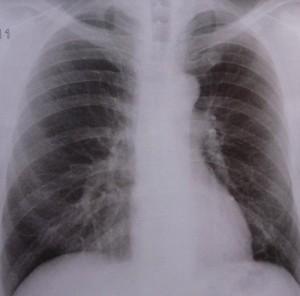 Robert-Koch-Institut warnt vor vermehrten multiresistenten Stämmen bei Tuberkulose