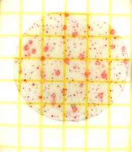 Neue DNA-Analyse bestimmen in wenigen Stunden resistente Keime