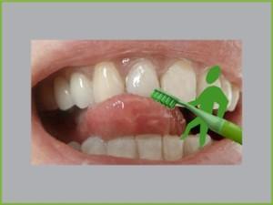 Veneers: So werden Zähne weiß wie Schnee und Zahnlücken verschwinden