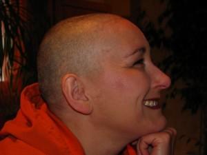 Neue Methode zur Brustkrebs-Diagnose: In Zukunft kann Brustkrebs durch einen Urintest nachgewiesen werden